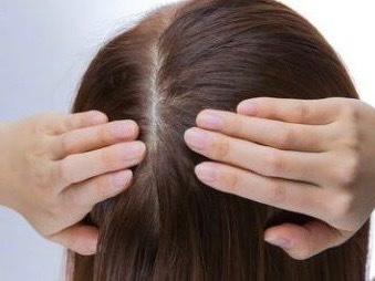 40代の髪のボリュームアップに効く成分は?