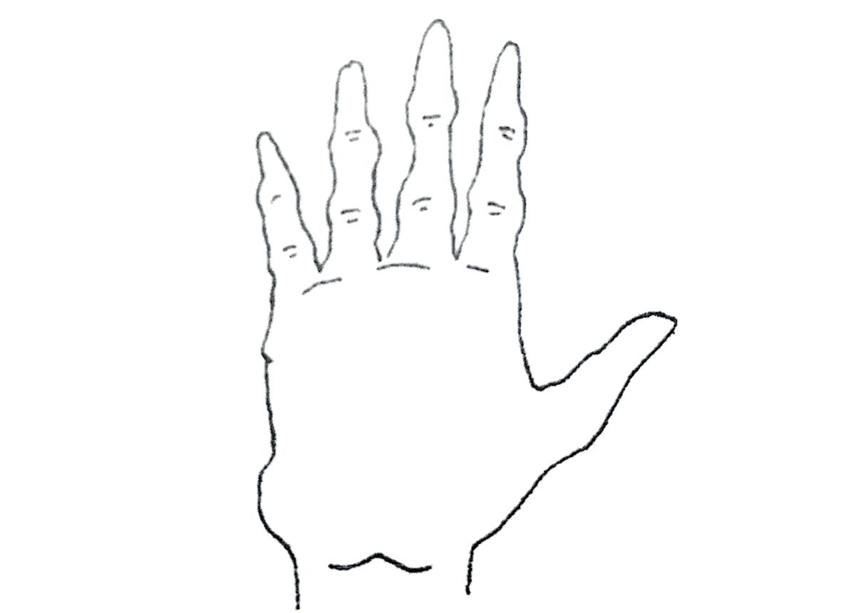 結節型の手
